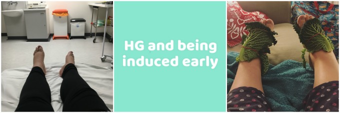 HG and being induced early
